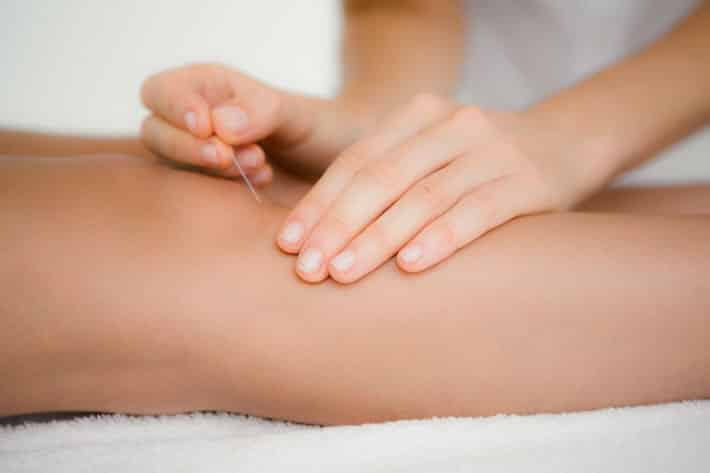 Acupuncture Soothes Knee Osteoarthritis With Anti-Inflammatory Effects