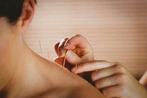 Acupuncturists making their point on allergies