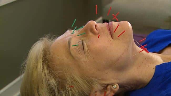 Study shows acupuncture may help reduce migraines